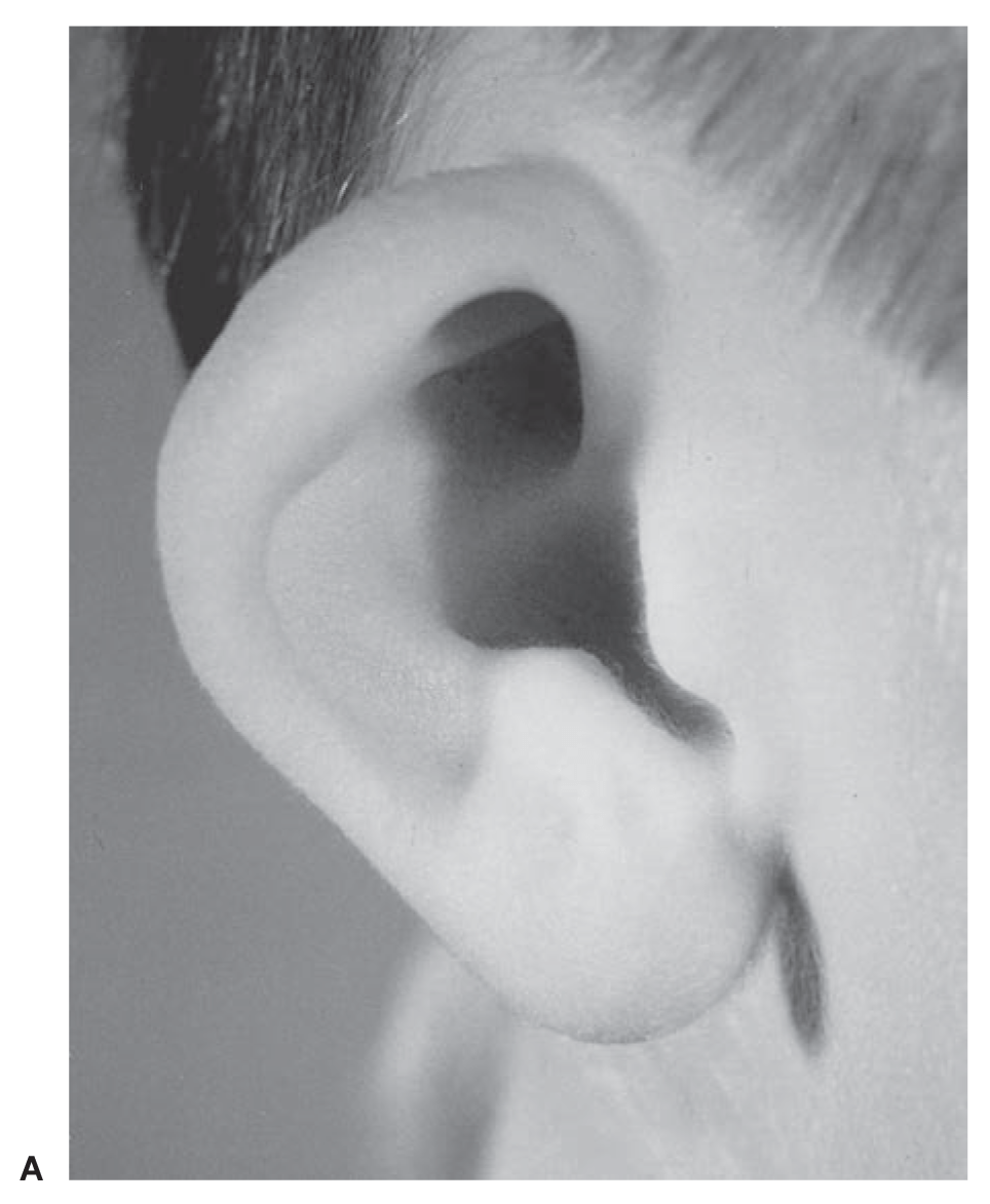 Constricted ear A
