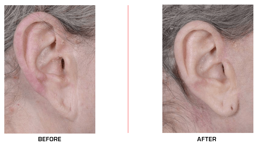 ear distortion