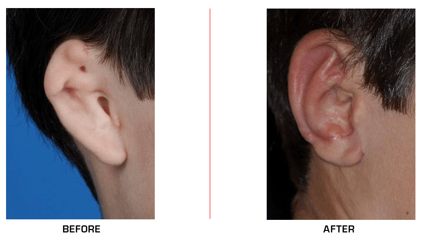 Ear Reconstruction before after case10