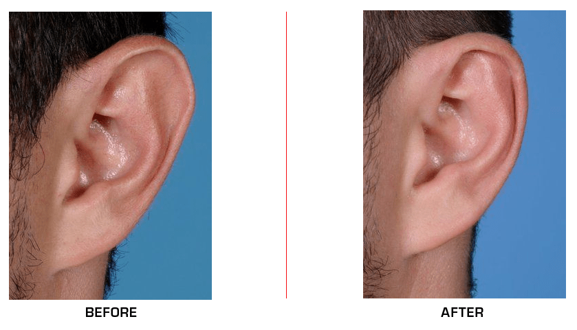 ear reduction case1