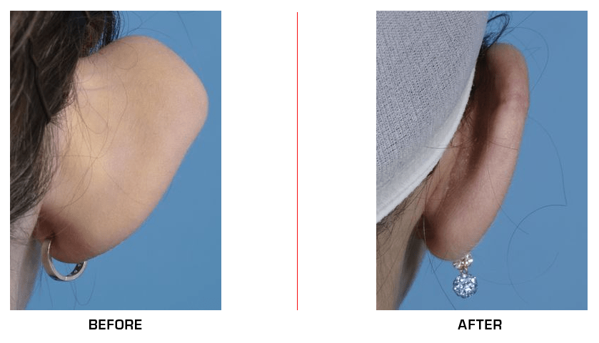 Ear Reduction before after case2