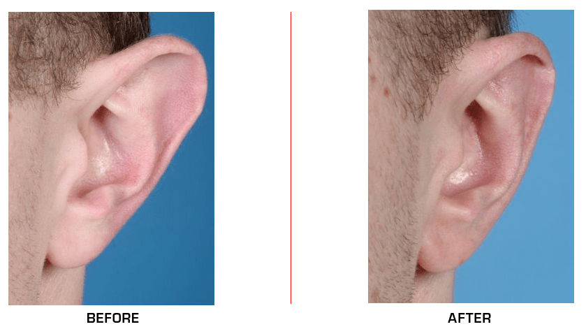 Ear Reduction before after case3