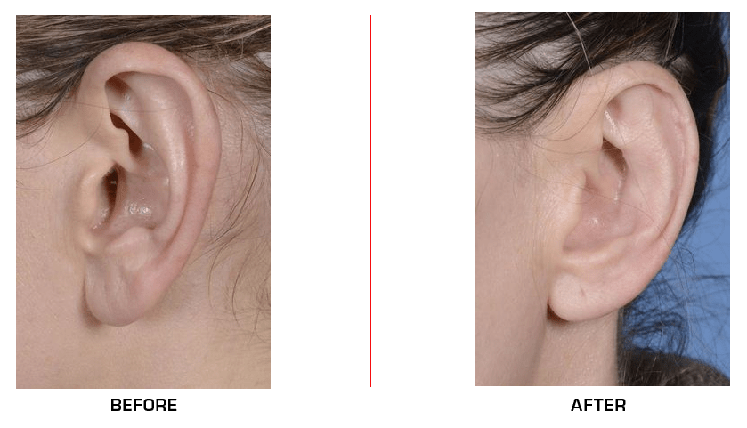 Ear Reduction before after case4