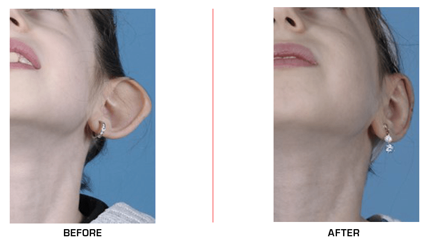 Otoplasty Ear Reduction before after case5