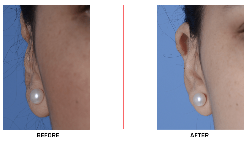 otoplasty revision before after case 1