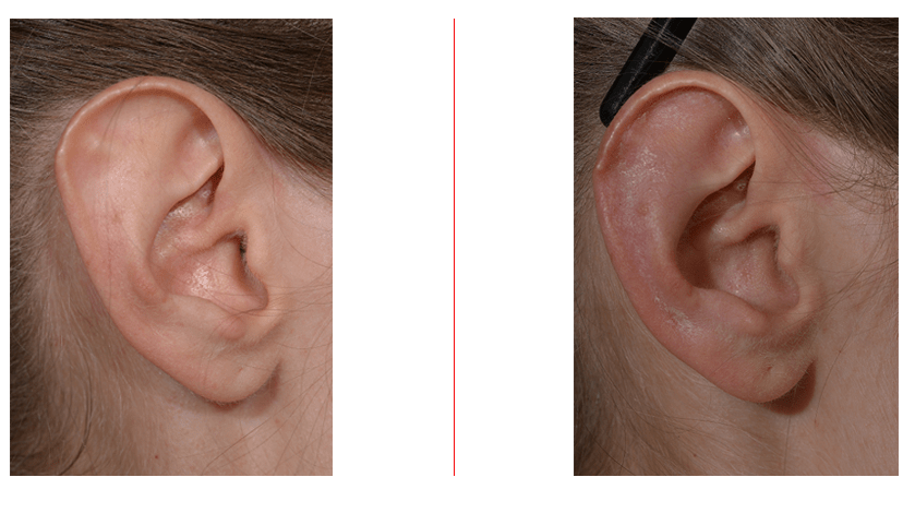 Otoplasty Correction of Stahl's Ear
