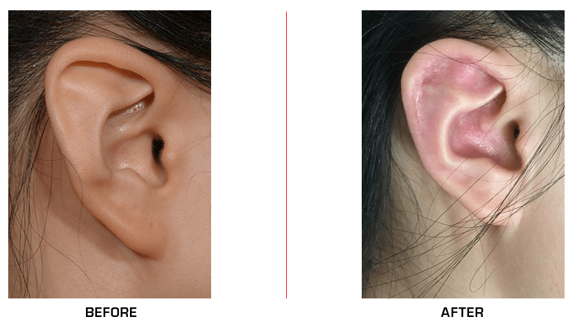 Stahl's Ear before after case
